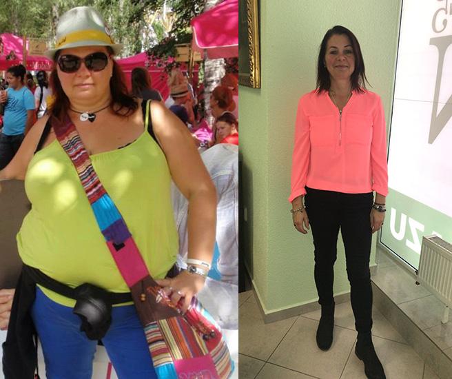 Angela efter viktminskning med keto-diet